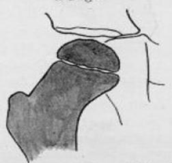 Normal hofte ved syksomsdebut Kilde: Walderstrom H. Zeitschr. Ortopaed. Chirurg